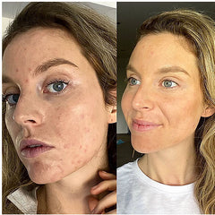My acne journey with pcos