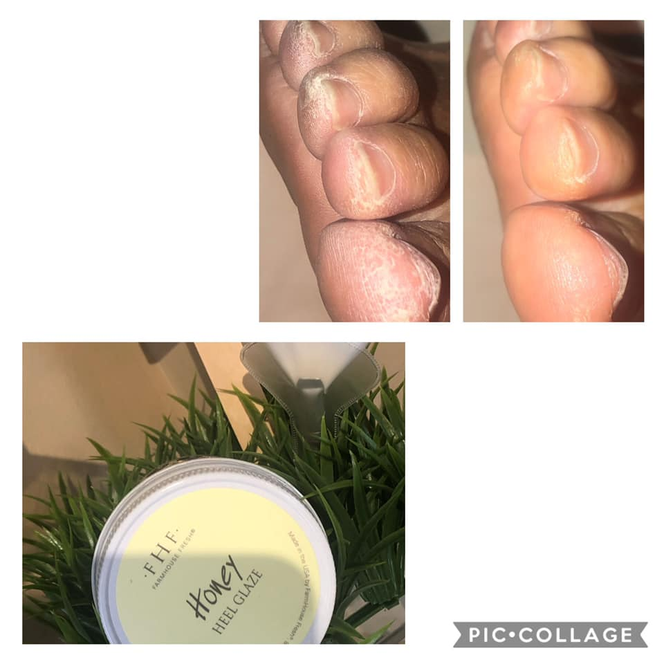 Dry, Cracked Heels and Toes?