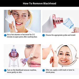 Pore Cleaner Blackhead Remover Vacuum Face Skin Care Suction Black head Black Dots Blackheads Pimples Removal Deep Cleaning Tool