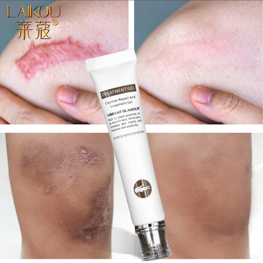 LAIKOU Stretch Mark Remover Skin Care Scar Cream From Stretch Marks Maternity Treatment Scar Repair Skin Care Body Cream Bio Oil