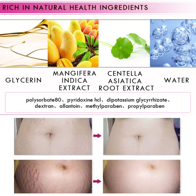 Natural Mild Non-irritating Mango Stretch Mark Cream For Pregnancy Repair Scar Slack Line Abdomen Stretch Marks Cream TSLM1