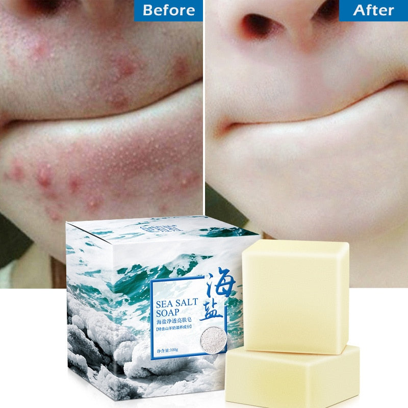 100g Sea Salt Soap Goat Milk Remove Acne Oil-Control Clean Skin Shrinks Pores Whitening Cleanser Blackhead Remover Natural TSLM1