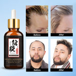 Load image into Gallery viewer, Hair Loss Products for Fast Hair Growth Treatment Hair Essence Oil Natural Extracts Liquid Hair Care Regrowth Products Solutions