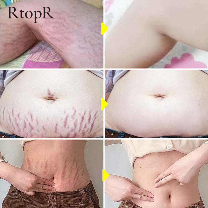 Mango Remove Pregnancy Scars Acne Cream Stretch Marks Treatment Maternity Repair Anti-Aging Anti-Winkles Firming Body Creams