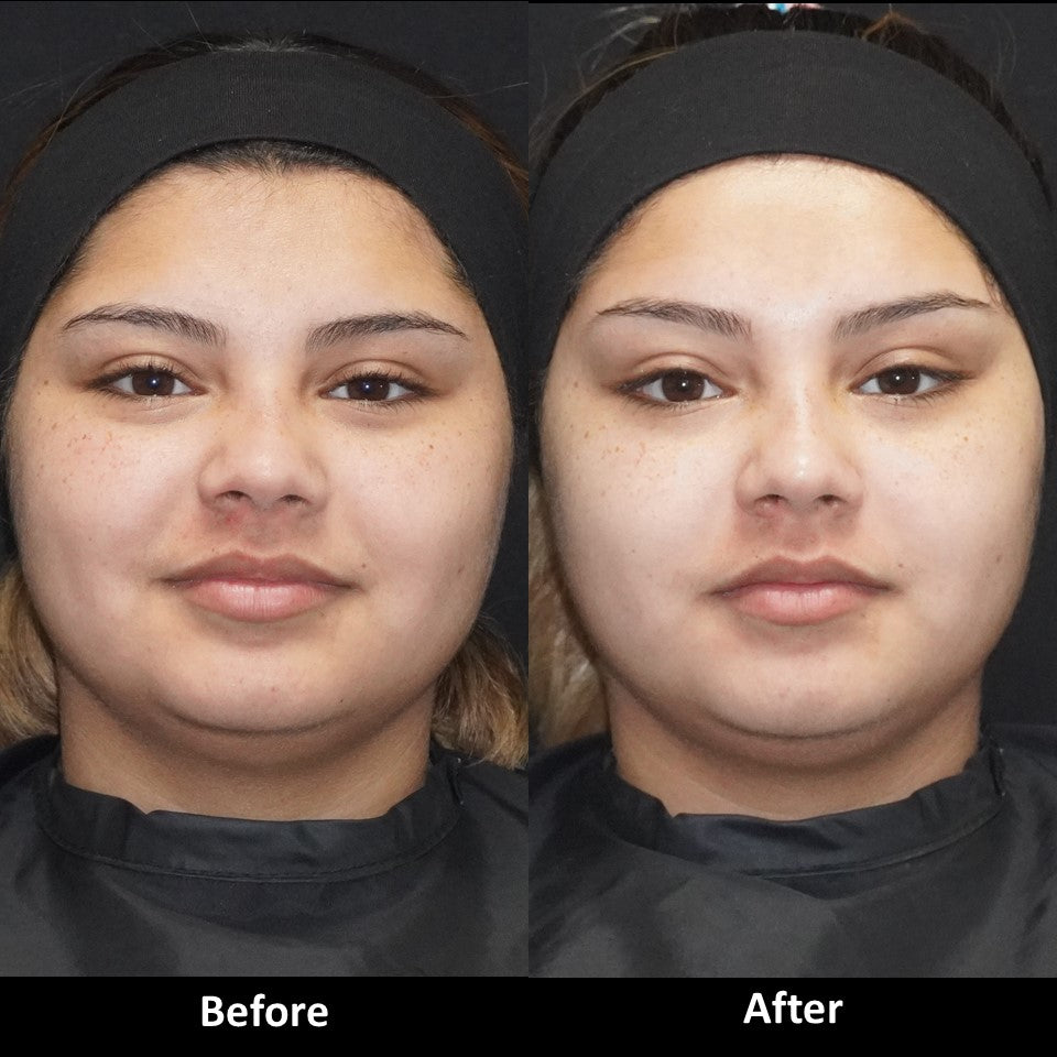 Amazing Results with Botox to Slim the Lower Face