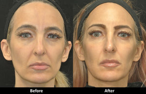 Liquid Facelift before and after