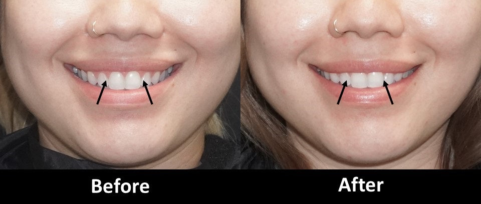 Botox before and after gummy smile