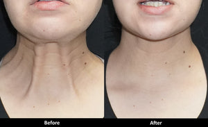 Botox before and after neck