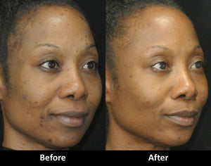 Micro Laser Peel before and after