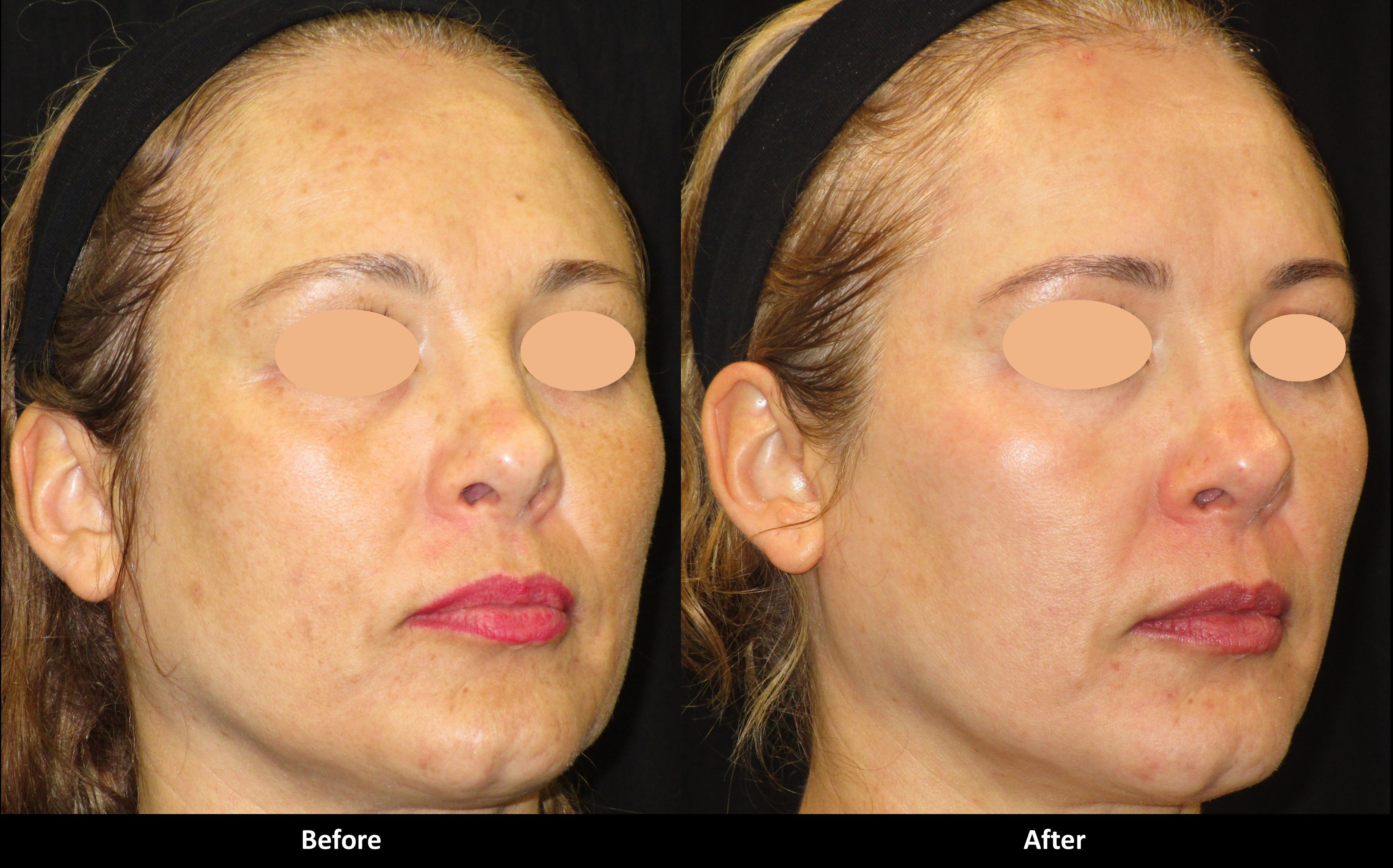 Soft and Smooth Rejuvenation before and after