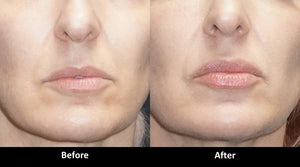 Volbella before and after lip enhancement