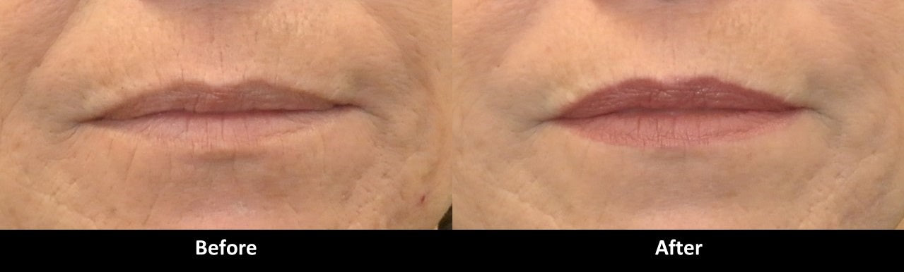 Volbella before and after lip lines