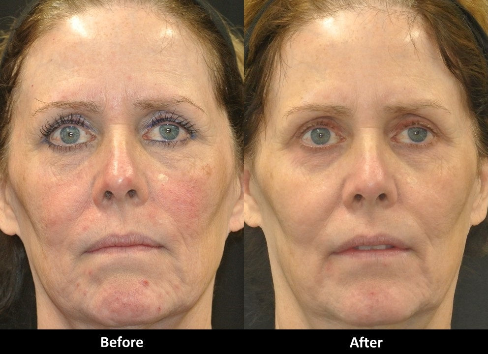 Tight and Bright Rejuvenation before and after