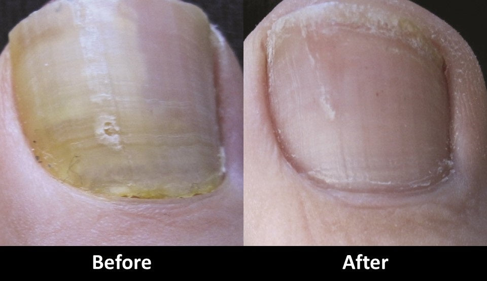 Laser Toenail Fungus treatment before and after