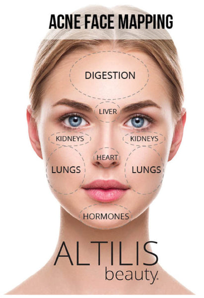 Acne Face Mapping by Altilis Beauty
