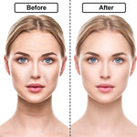 Load image into Gallery viewer, 🔥Hot Sale🔥Matte Face Lift Sticker Face Lift Tape