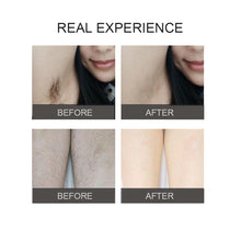 Load image into Gallery viewer, Latest Upgraded 999,999 Photoepilator Flashes Laser LCD Display IPL Laser Hair Removal 8 Gear Permanent Painless Hair Remover