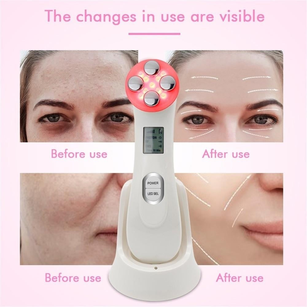 New Face Care EMS Beauty Machine for Facial Skin Lifting Tighten Fine Lines Wrinkle Remove (White)