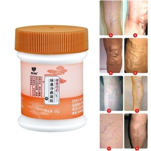 1 Piece 25g Varicose Veins Treatment Cream Vasculitis Treatment