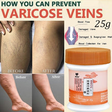 Load image into Gallery viewer, 1 Piece 25g Varicose Veins Treatment Cream Vasculitis Treatment