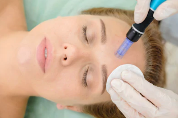 Classroom - Fractional Mesotherapy (Microneedling) - CPD Accredited