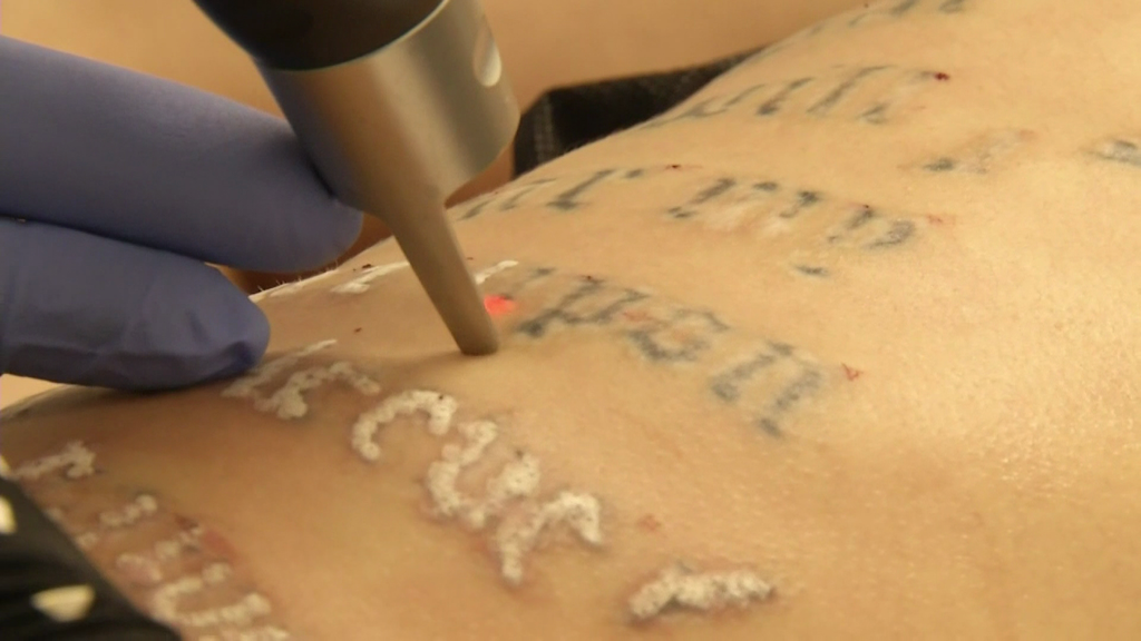 Are You Considering a Tattoo Removal?