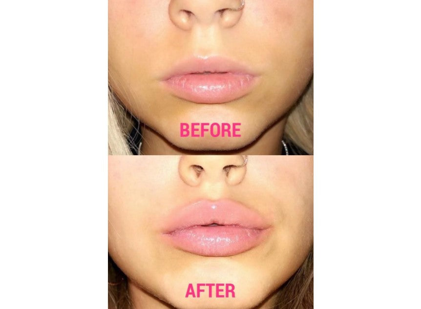 Plump-IT Volumising Lip Plumper