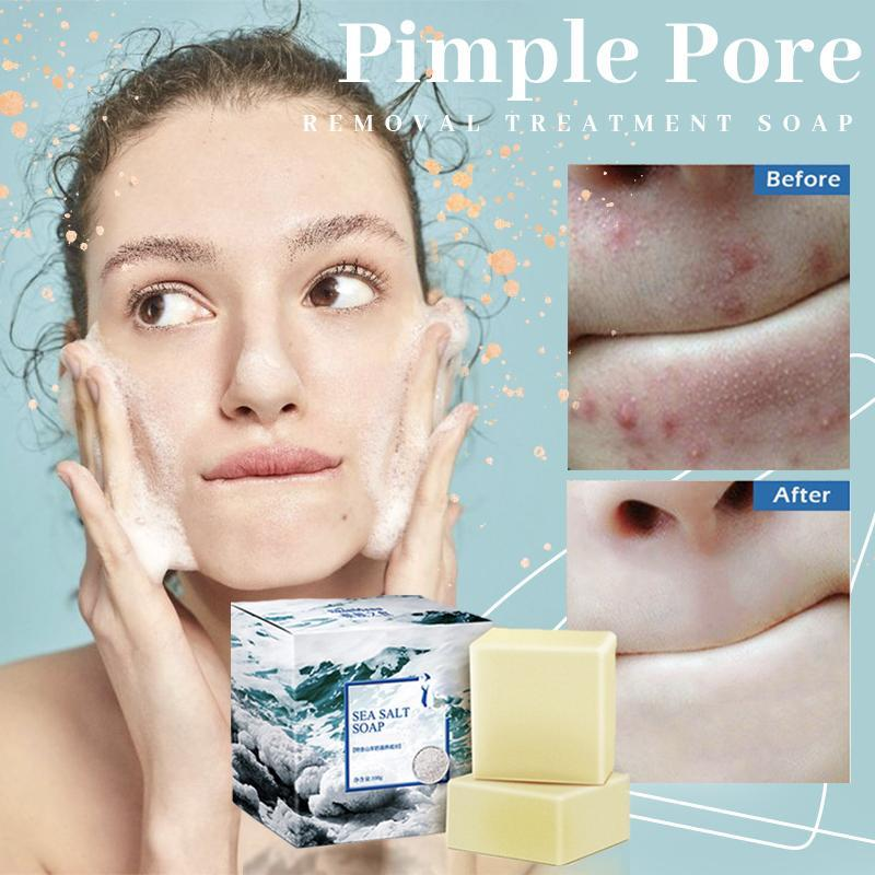 Pimple Pore Removal 3 Days Treatment Soap