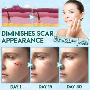 Surgery Scar Removal Silicone Tape