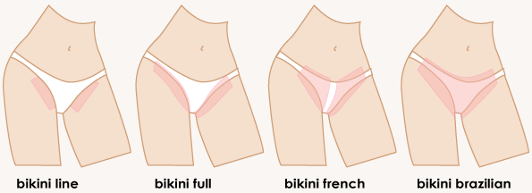 Bikini Wax Diagram