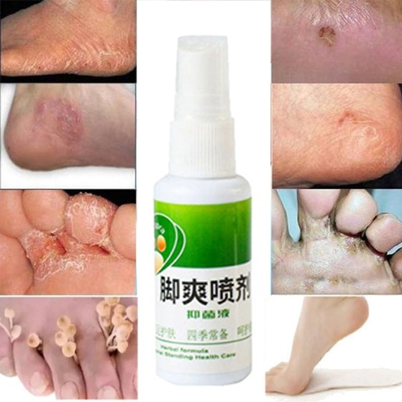 30ML Remover Remove Foot Odor Sweat Antibacterial Bacteriostatic Plant Herb Spray