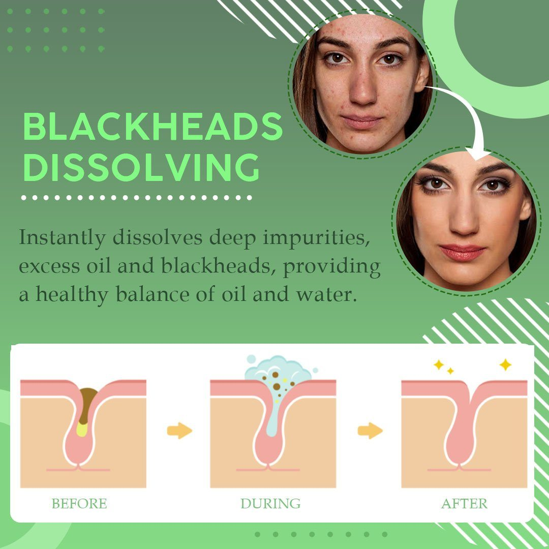 Blackhead Dissolving Gel