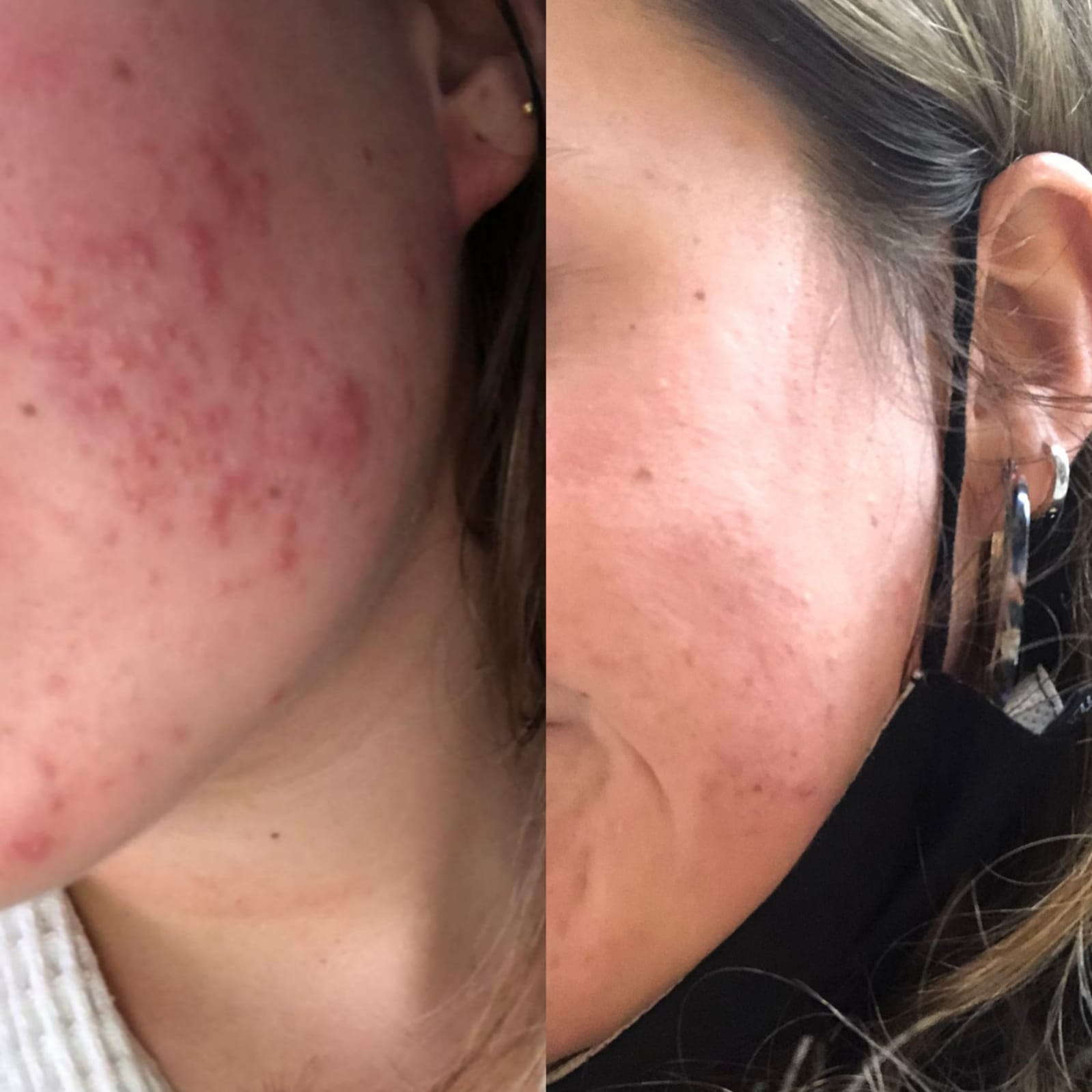 Skin transformation in a month. Results for acne treatment that works, cleared acne, inflammation has dissapeared and spots have been almost cleared
