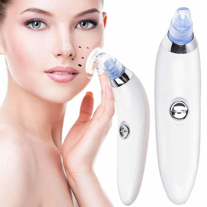 DermaSuction Blackhead Remover Snatcher Online Shopping South Africa