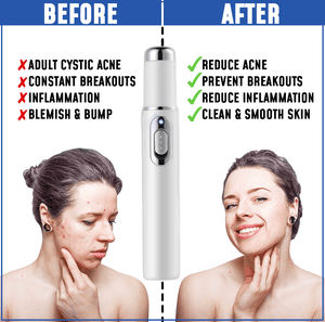 Acne Clearing Therapy Pen