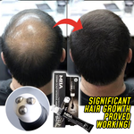Load image into Gallery viewer, Scalp Intense™ Roll-on Hair Growth Serum
