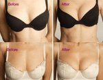 Load image into Gallery viewer, Instant Magnetic Breast Therapy Inserts