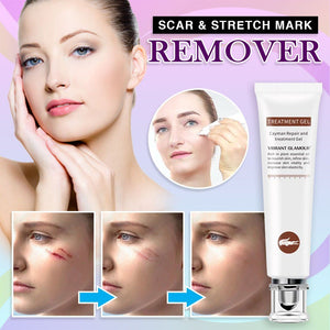Scar & Stretch Mark Remover