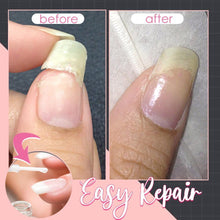 Load image into Gallery viewer, Instant Nail Repair Protect Gel