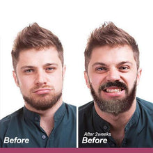 Load image into Gallery viewer, RapidGrowth™ Facial Hair Roller