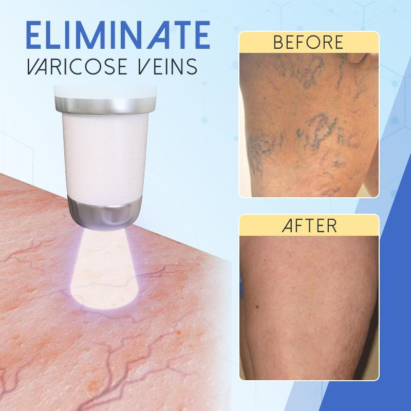 Blue-Light-Therapy Pen for Varicose Veins