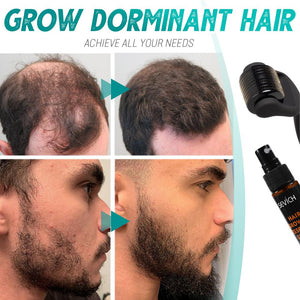 Beard Growth Roller Set