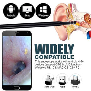 ProEar™ 3-in-1 Ear Endoscope