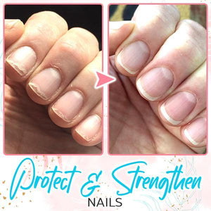 NailIt™ Repair Protection Gel