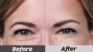Electric Eye Boost Serum