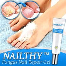 Load image into Gallery viewer, Nailthy™ Fungus Nail Repair Gel