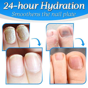 Nailthy™ Fungus Nail Repair Gel