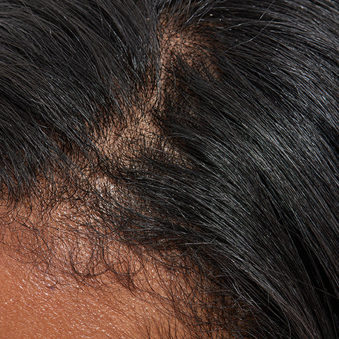 Image of thinning hair on the scalp