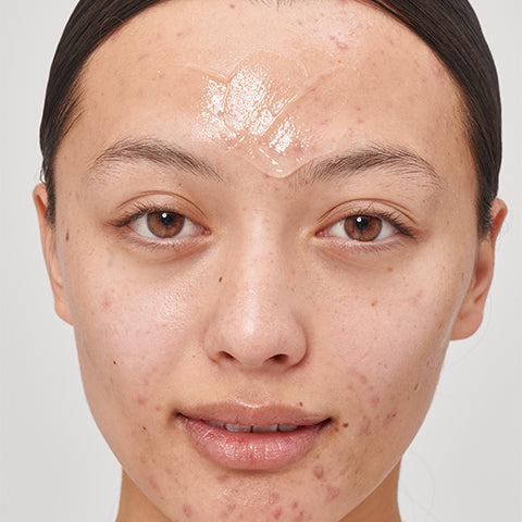 Model with Glucoside on her forehead