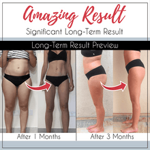 Load image into Gallery viewer, [ BUY1 FREE 1 🔥 ] TS™ SLEEPING BEAUTY LEGS SHAPER